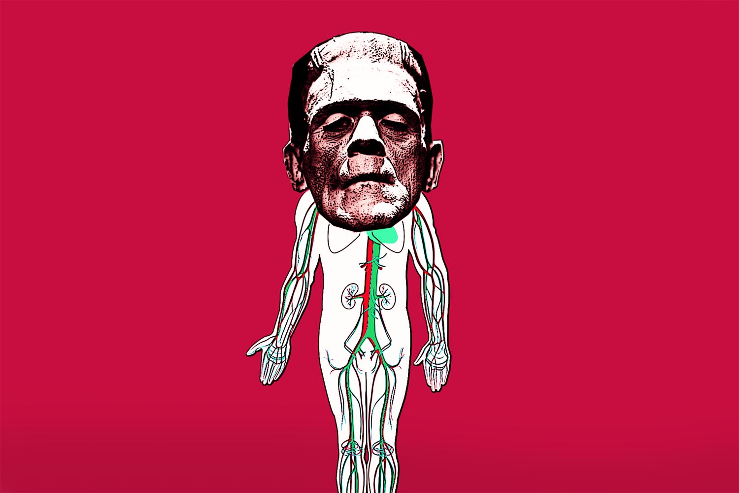 Frankenstein Scientist Attached a Head Transplant to a Dead Body